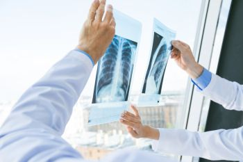 Doctors discuss x-ray. Group of doctors look and discuss x-ray in a clinic or hospital