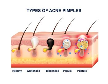 Skin Acne Anatomy Composition. Colored skin acne anatomy composition with types of acne pimples before and after vector illustration